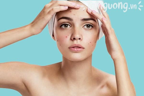 Sữa rửa mặt Cetaphil Gentle Skin Cleanser có trị mụn không?