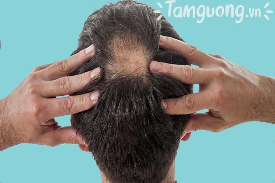 Dầu gội trị rụng tóc cho nam