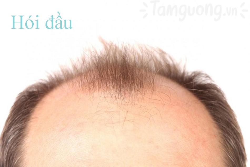 Khi nào dùng dầu gội trị rụng tóc?