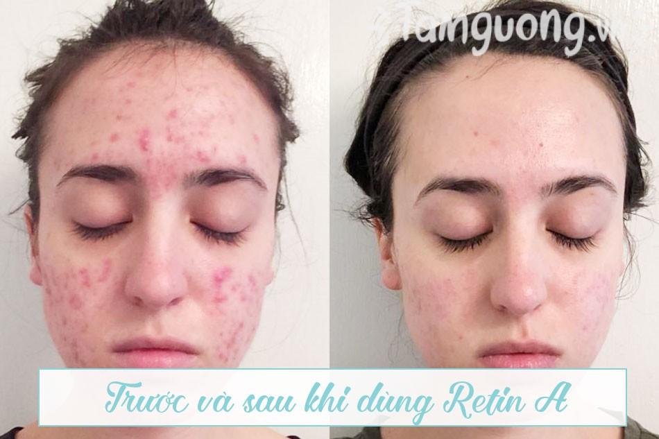 Hình ảnh trước và sau khi dùng Retin A (Retin A before and after)