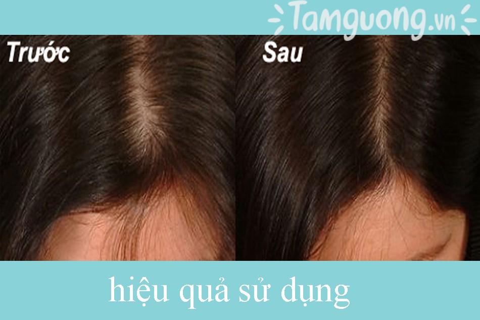 Review dầu gội trị dụng tóc