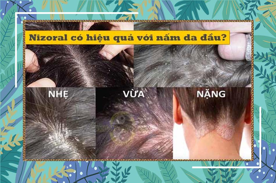 Dầu gội Nizoral trị gàu, nấm da đầu, rụng tóc có được không?