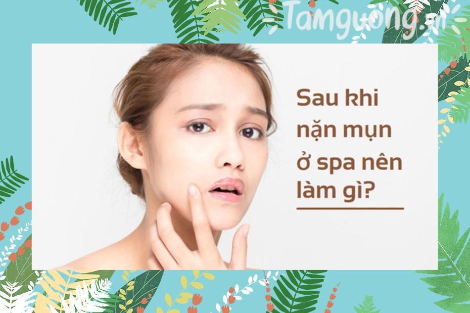 Hướng dẫn cách chăm sóc da sau nặn mụn tại Spa