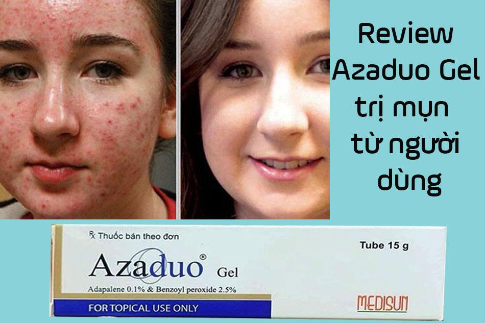 Review Azaduo Gel trị mụn từ người dùng
