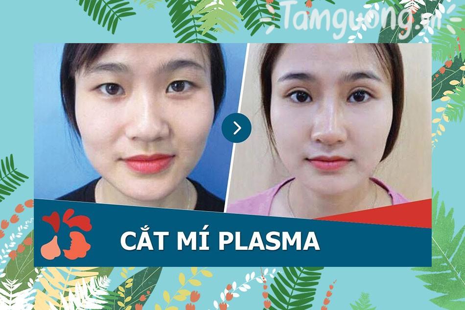 Review thẩm mỹ viện Kangnam từ Webtretho