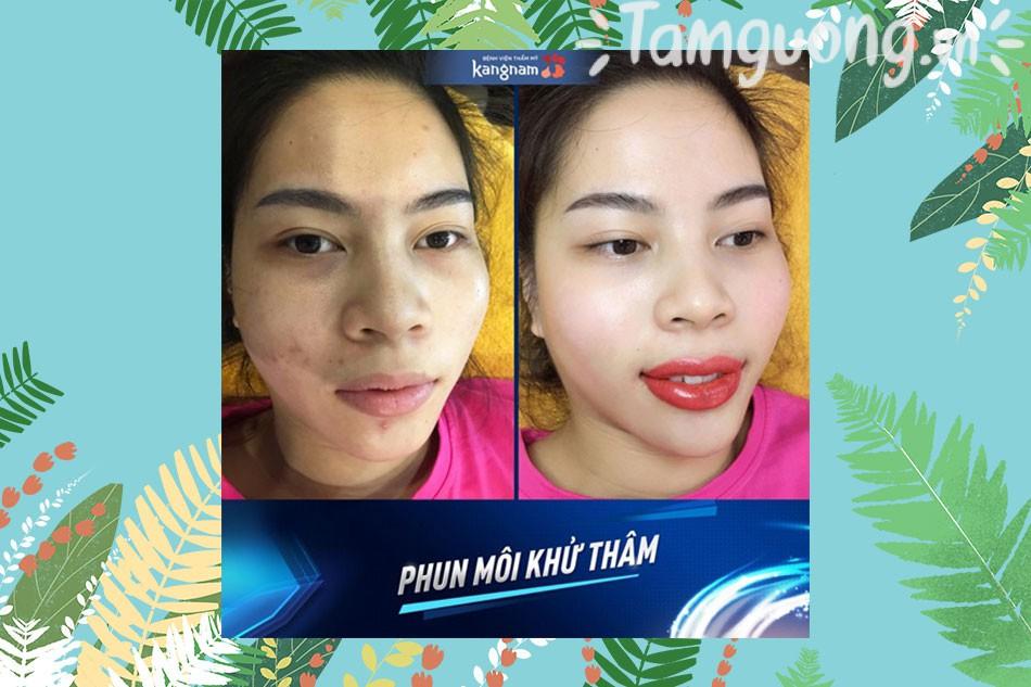Thẩm mỹ viện Kangnam phun môi
