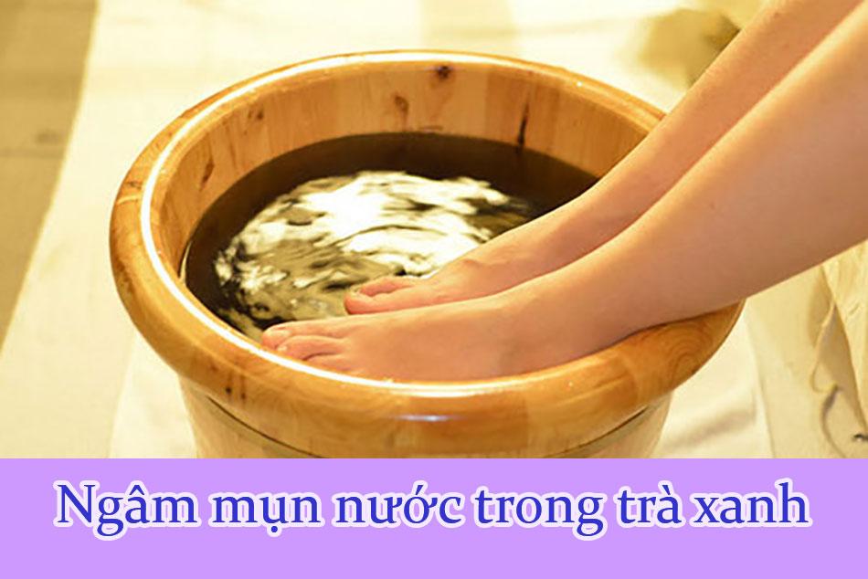 Ngâm mụn nước trong trà xanh