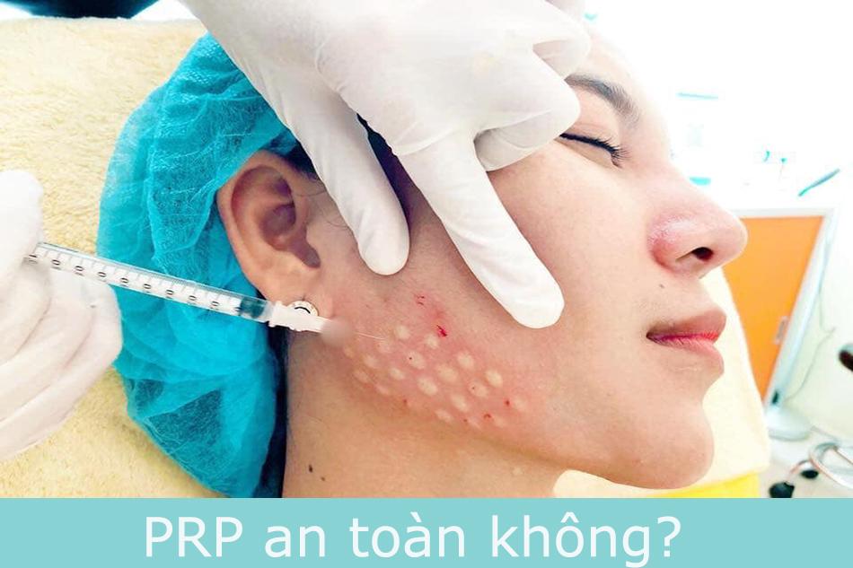 PRP an toàn không?