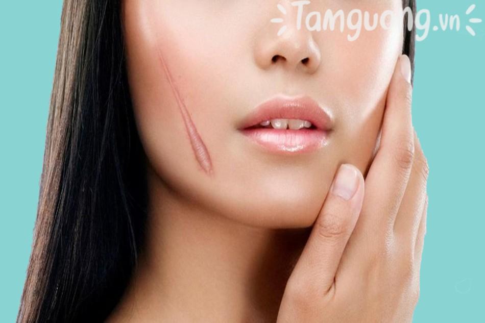 Nguyên nhân và cách ngăn ngừa sẹo lồi, những vấn đề thường gặp khi điều trị