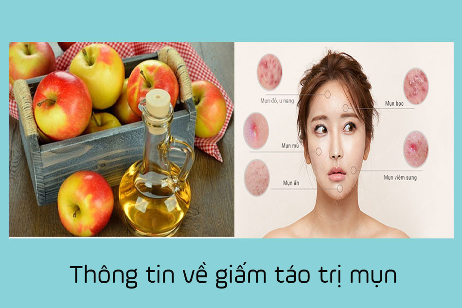 Thông tin giấm táo trị mụn