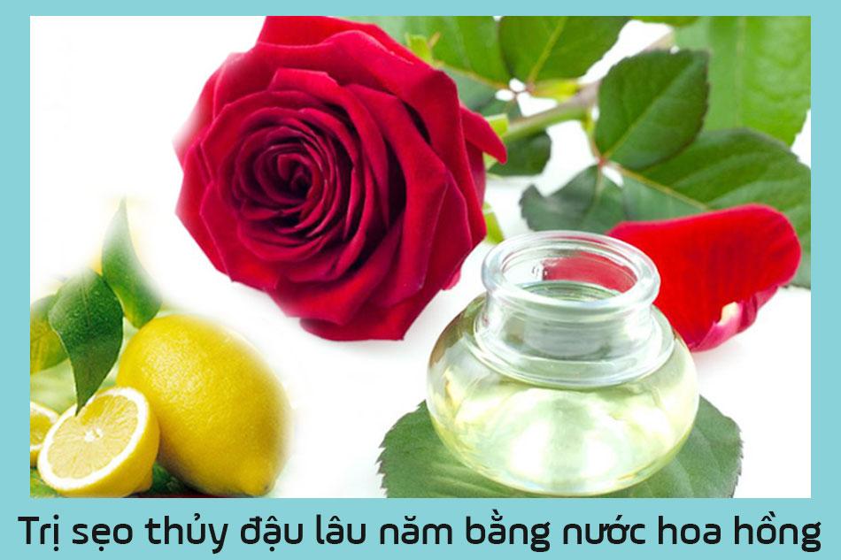 Trị sẹo thủy đậu lâu năm bằng nước hoa hồng