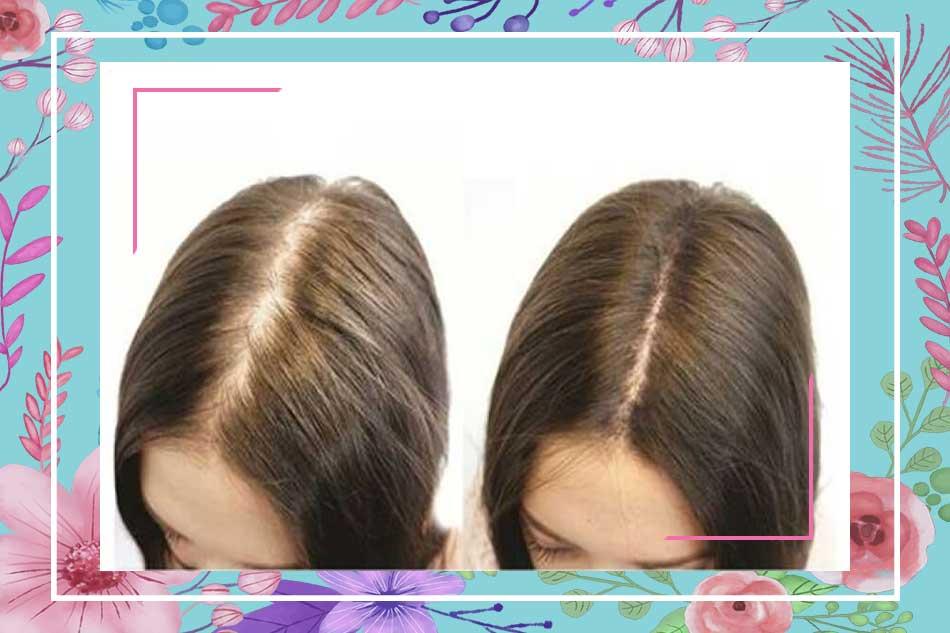Nguyên nhân dẫn đến tình trạng gãy rụng, tóc mọc chậm?
