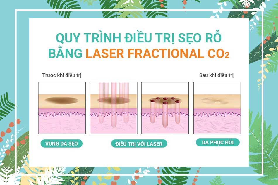 Quy trình thực hiện Laser Fractional CO2