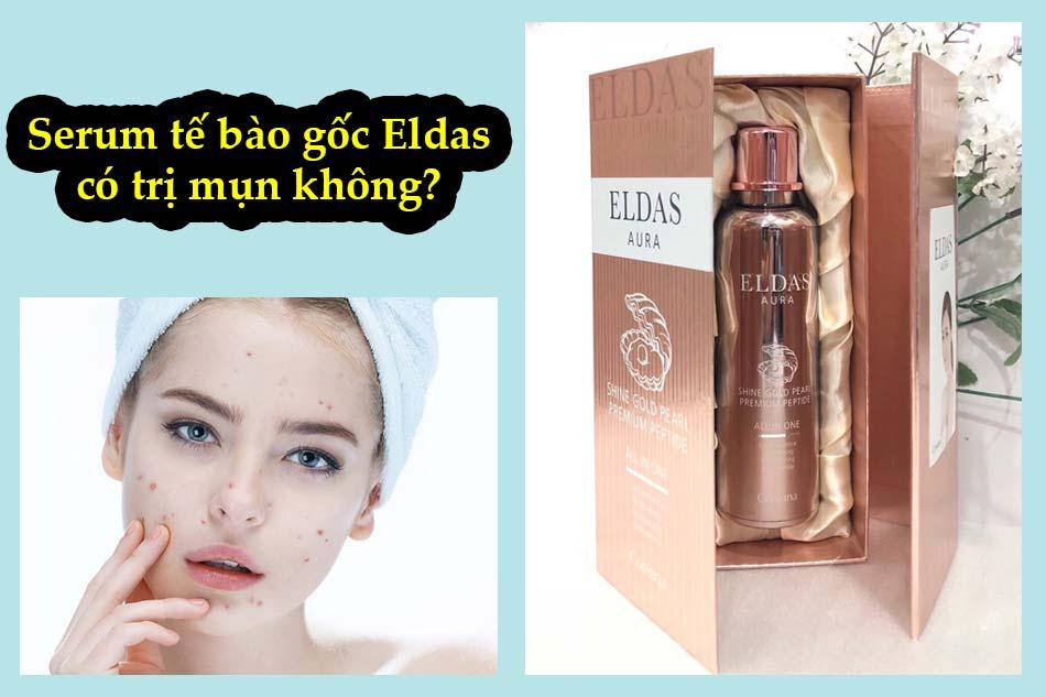 Serum tế bào gốc Eldas có trị mụn không?