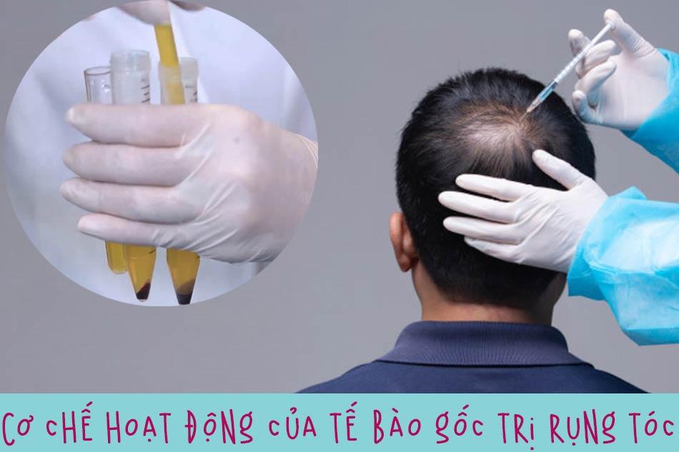 Cơ chế hoạt động của tế bào gốc trị rụng tóc