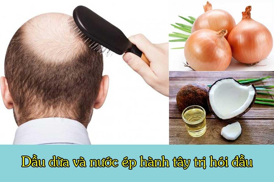 Dầu dừa và nước ép hành tây trị hói đầu