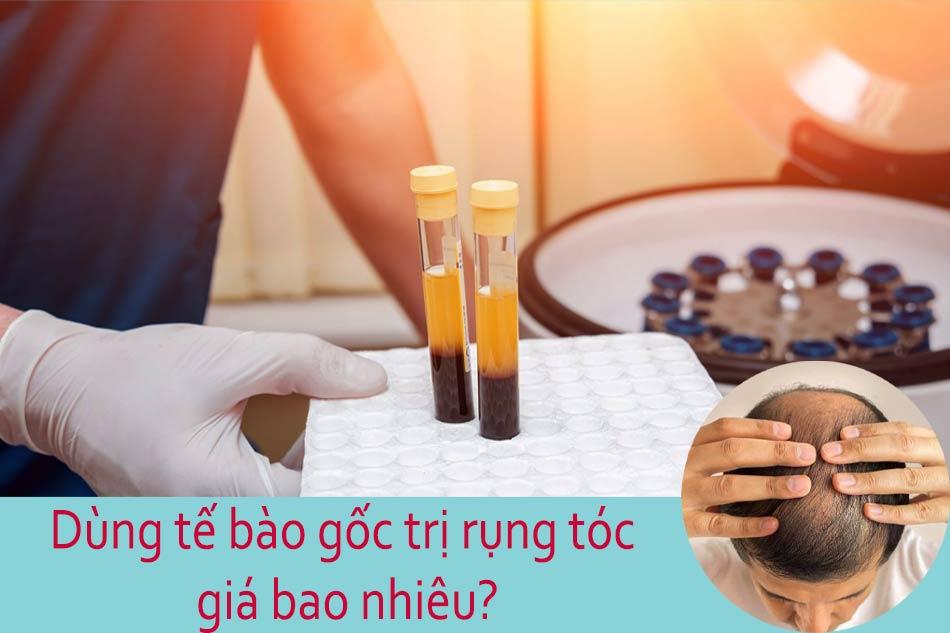 Dùng tế bào gốc trị rụng tóc giá bao nhiêu?