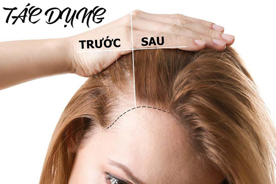 Thuốc Hair Tonic có tác dụng gì?