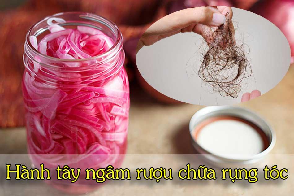 Hành tây ngâm rượu chữa rụng tóc