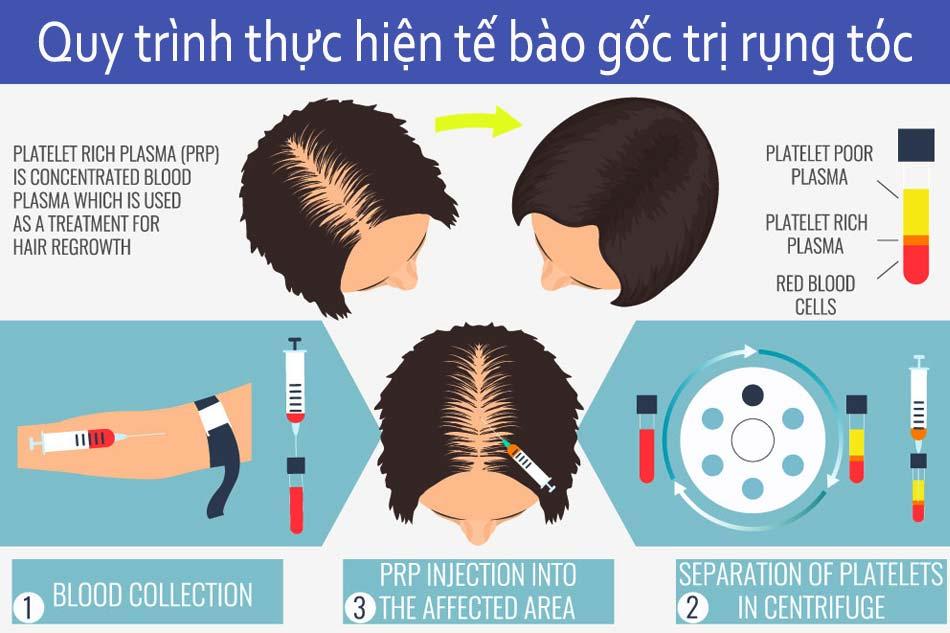 Quy trình thực hiện tế bào gốc trị rụng tóc