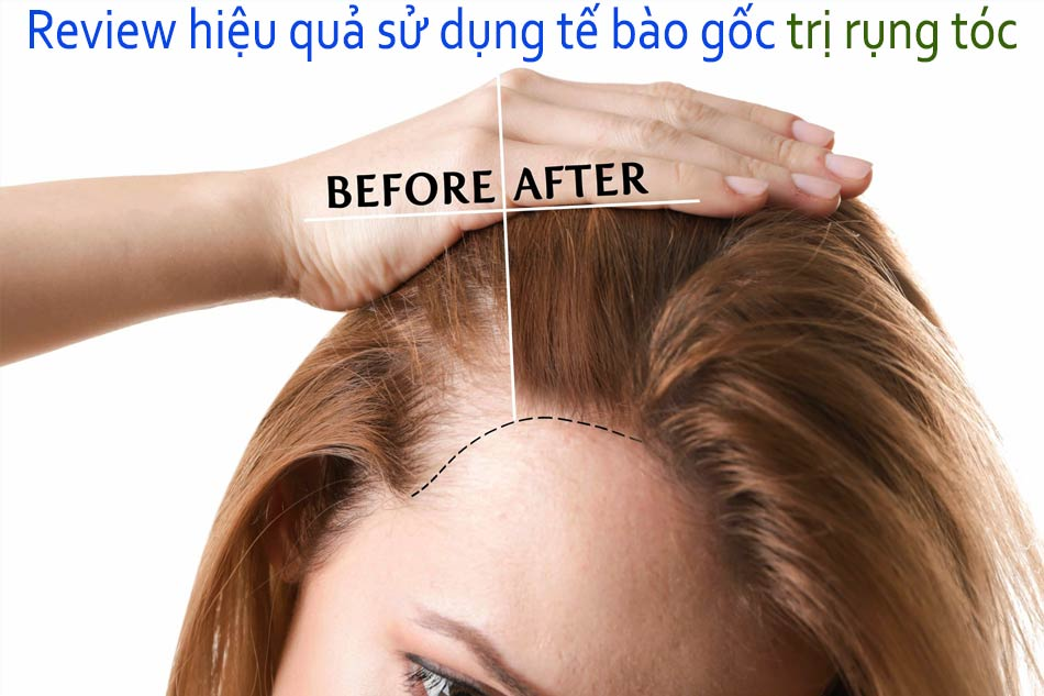 Review hiệu quả sử dụng tế bào gốc trị rụng tóc