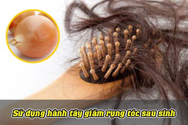Sử dụng hành tây giảm rụng tóc sau sinh