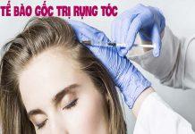 Tế bào gốc trị rụng tóc