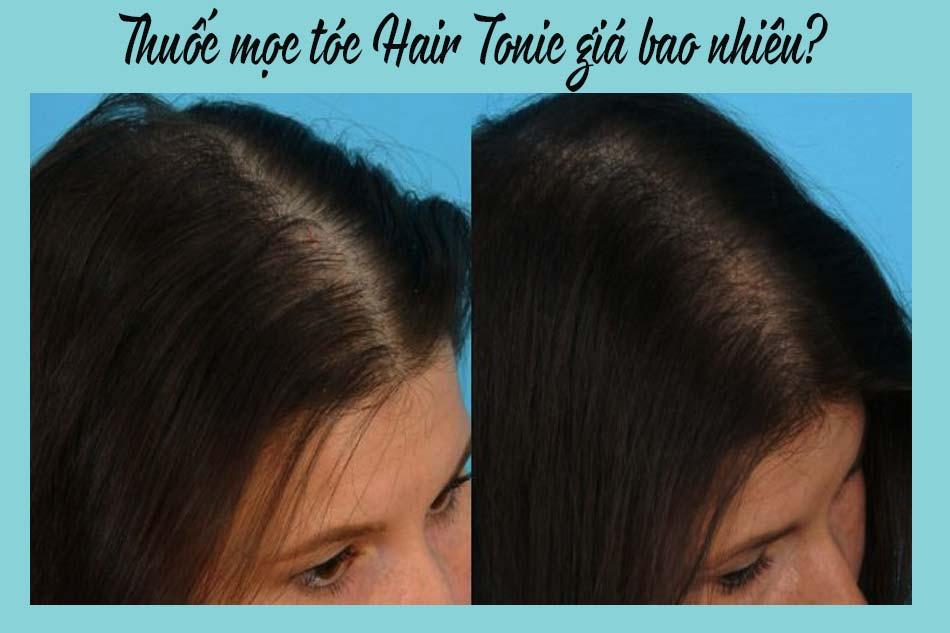 Thuốc mọc tóc Hair Tonic giá bao nhiêu?