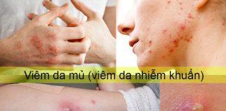 Viêm da nhiễm khuẩn (viêm da mủ)