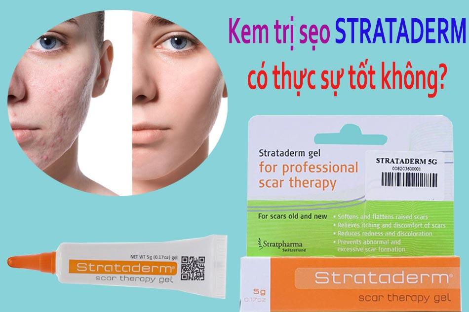 Kem trị sẹo Strataderm có thực sự tốt không?