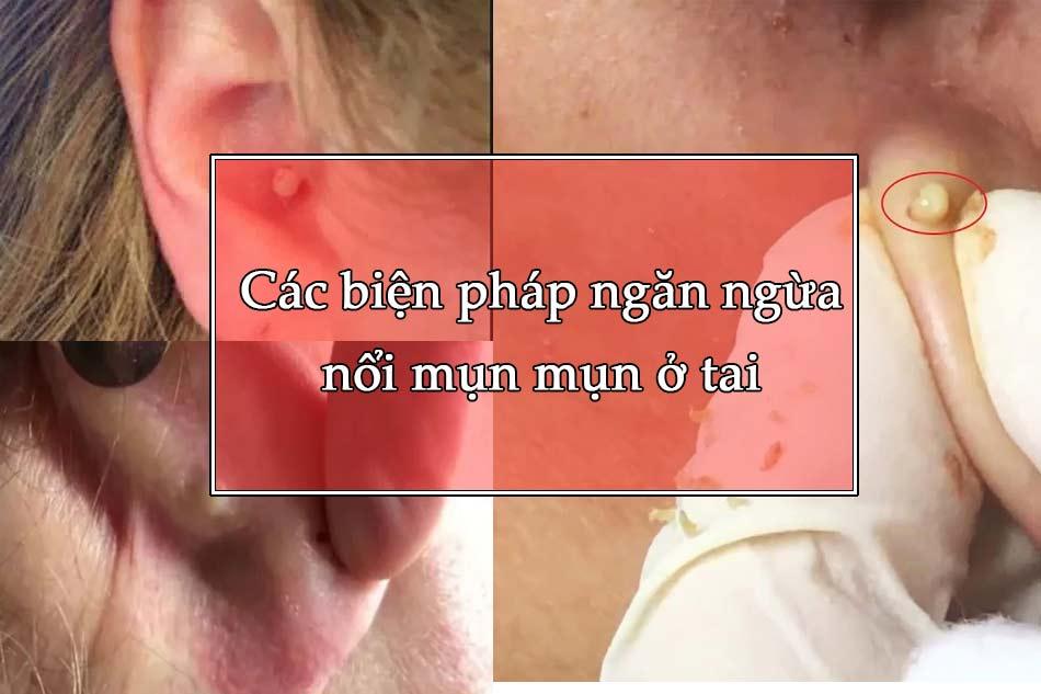 Các biện pháp ngăn ngừa nổi mụn mụn ở tai