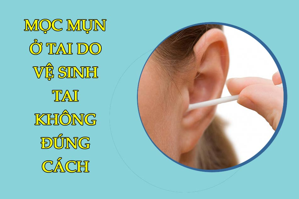 Mọc mụn ở tai do vệ sinh tai không đúng cách