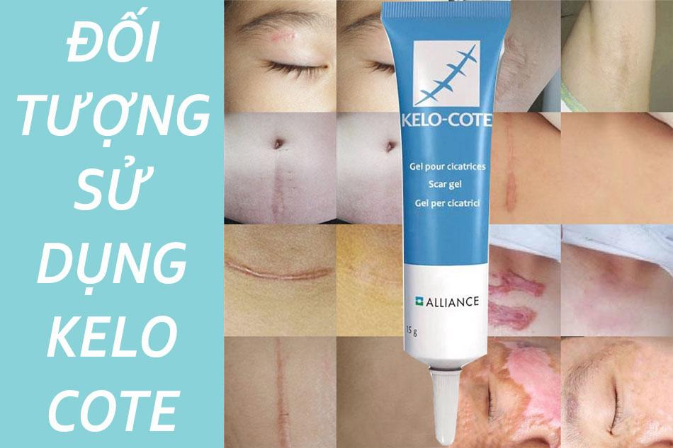 Dùng kem trị sẹo Kelo Cote Gel cho đối tượng nào?
