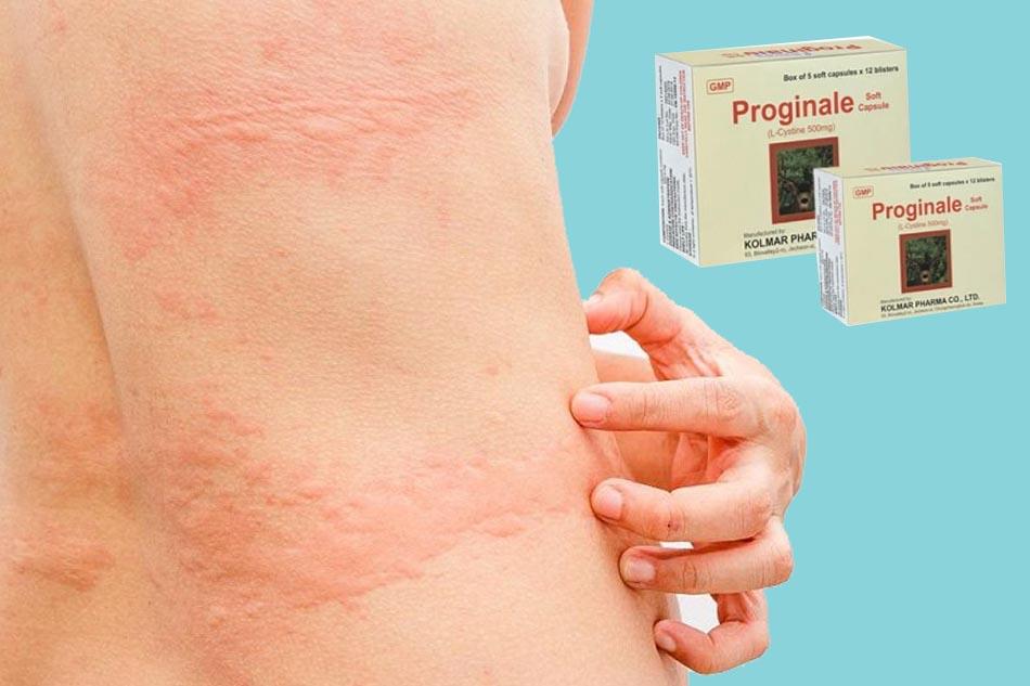 Thuốc Proginale có tác dụng gì?