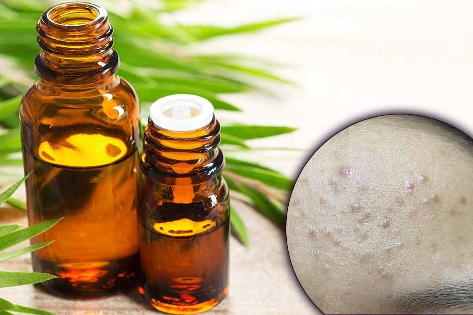 Tác dụng của dầu tràm trong điều trị mụn