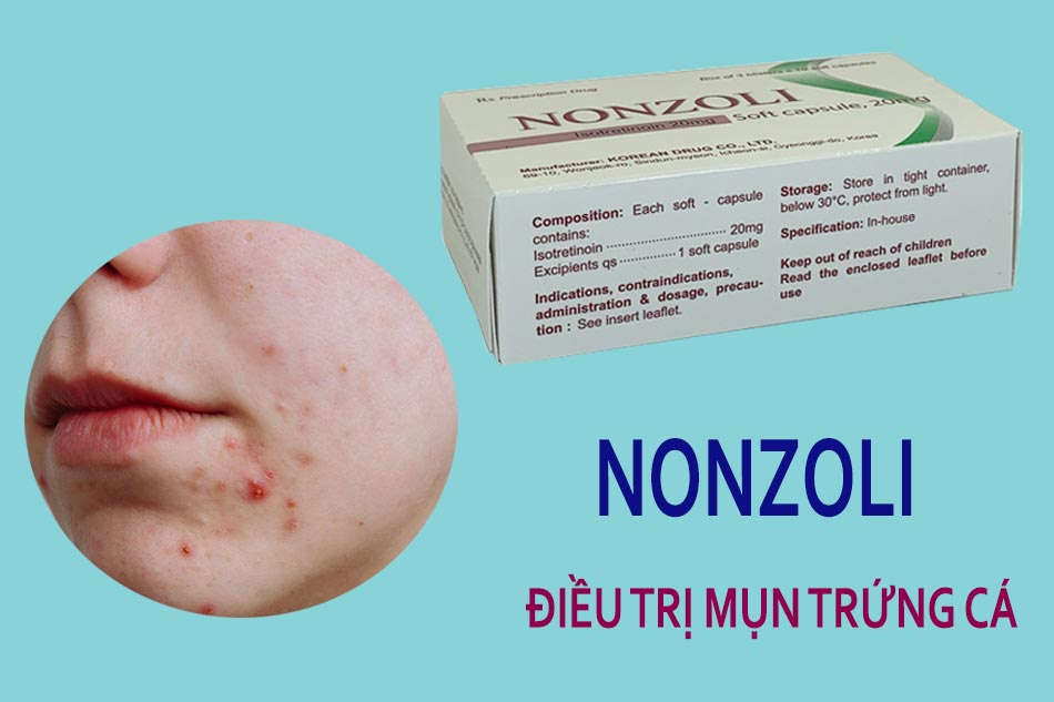 Tác dụng của Nonzoli hộp 30 viên