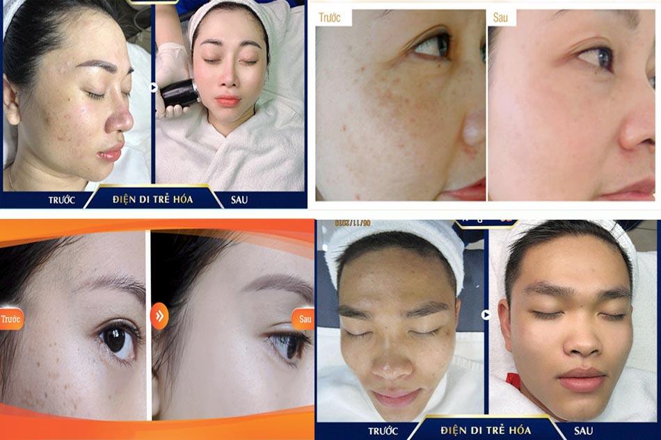 Hình ảnh trước và sau khi điện di Vitamin C
