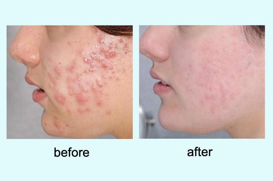 Đây là một sản phẩm toàn diện trong việc chăm da, giúp da luôn khỏe đẹp, trắng hồng tự nhiên.
