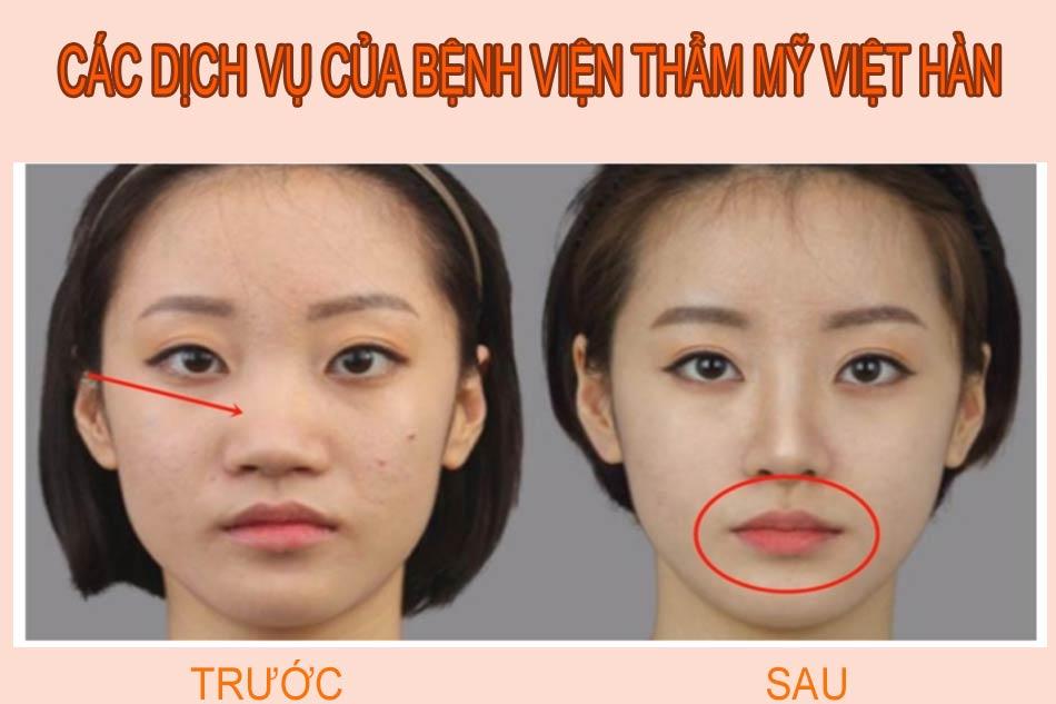 Các dịch vụ của bệnh viện thẩm mỹ Việt Hàn