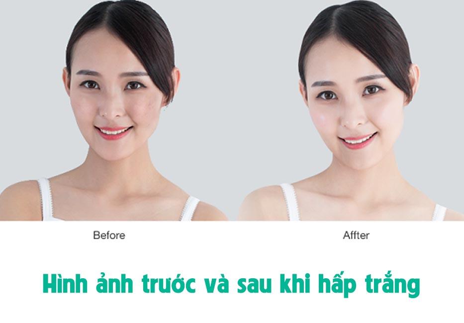 Hình ảnh trước và sau khi hấp trắng